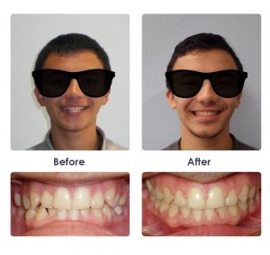 Braces and invisalign orthodontist in las vegas nv