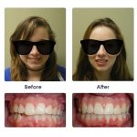 before-and-after-braces-photo-1