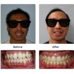 before-and-after-braces-photo-14