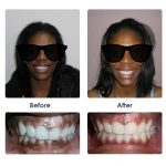 before-and-after-braces-photo-16