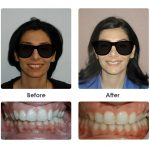 before-and-after-braces-photo-24