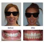 before-and-after-braces-photo-26