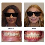 before-and-after-braces-photo-29